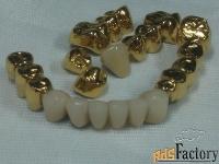 Установки для нанесения покрытий  под золото  на зубные протезы