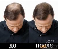 мгновенный загуститель волос